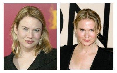 Renée Zellweger antes y despues