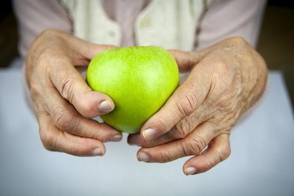 Remedios naturales para la Artritis INCREIBLE !!!