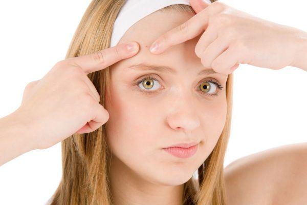 Remedios caseros o naturales para el acné