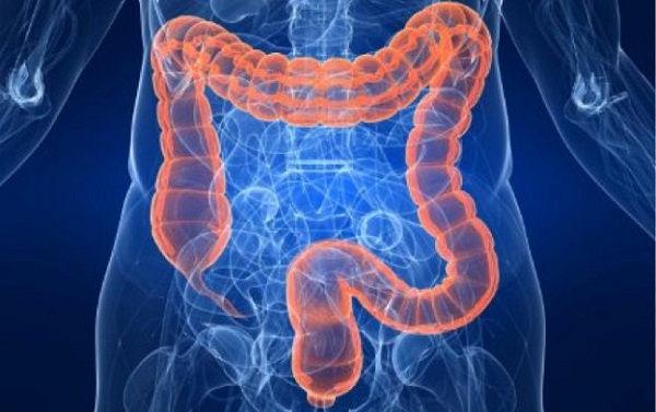 Remedios Caseros para el Síndrome de Colon Irritable