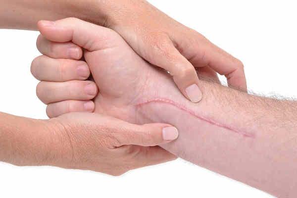 Remedio Casero para las Cicatrices y Chichones