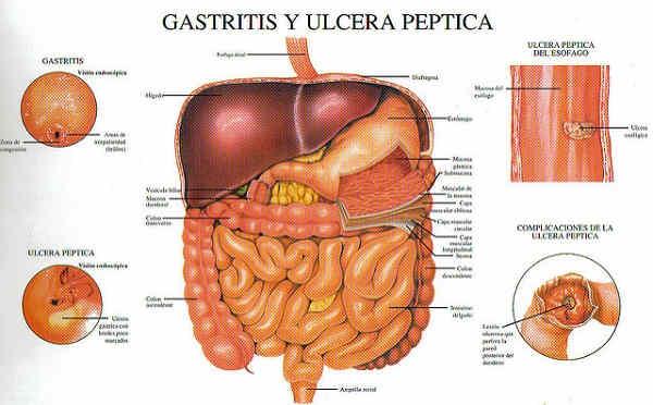 remedios-caseros-para-enfermedades-del-estomago-2