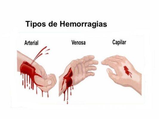 Remedios Caseros para las Hemorragias