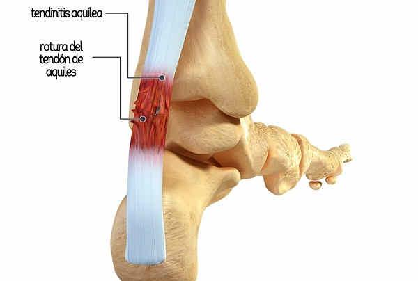 tendinitis