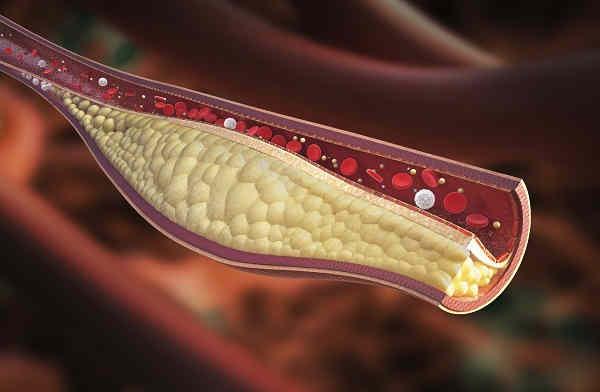 Remedios Caseros para los Trastornos del riego sanguíneo