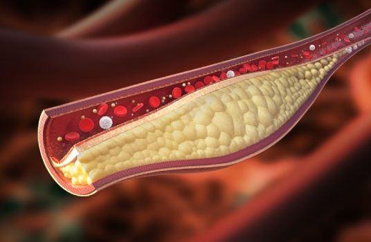 Como Controlar el Colesterol para una Vida Saludable