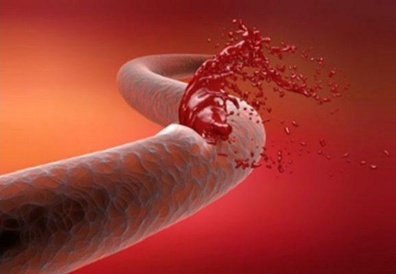 hemorragia2