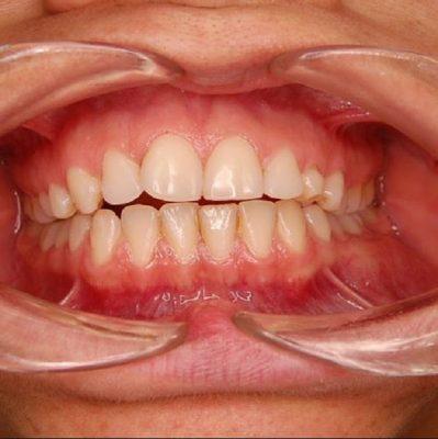 Remedios caseros para la inflamaci n de mucosa bucal y - Garganta reseca remedios ...