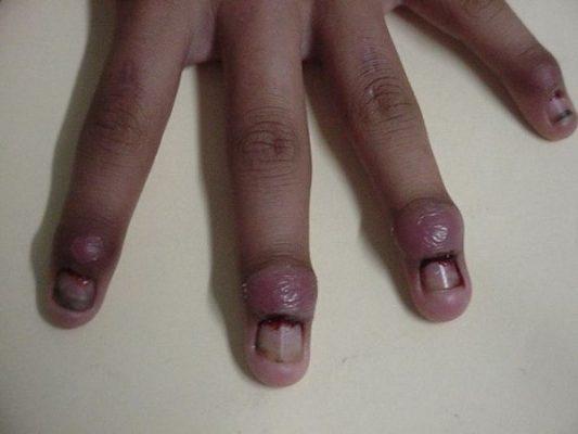A dedo limpio - 1 6