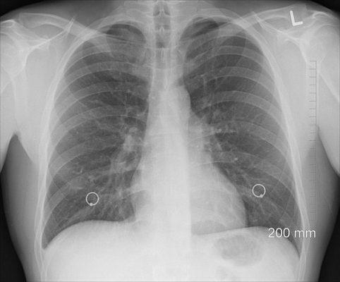 pulmones-2