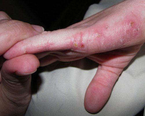 Remedios Caseros para los Eczemas