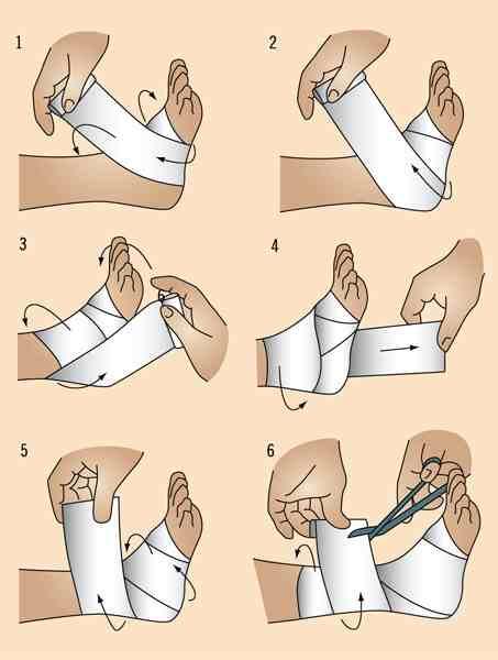 Remedios caseros para las fracturas en el pie