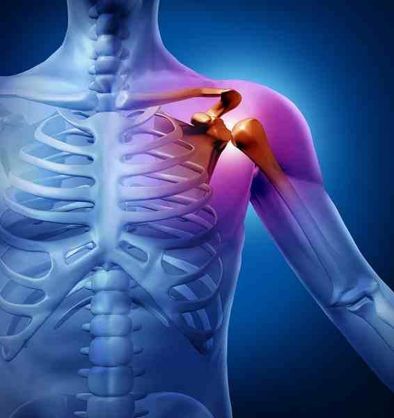Remedios caseros para las fracturas
