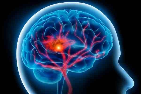Remedios caseros para un ataque cerebral y los calambres