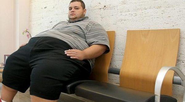 Nerviosa obesidad