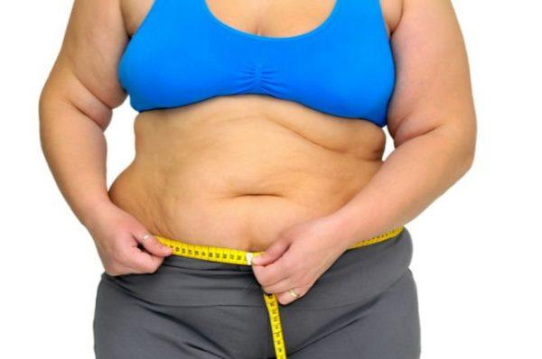 La Obesidad y Tipos de Obesidades