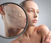 Cómo limpiar tu cara con estas simples recomendaciones!