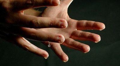Cómo eliminar la sudoración de manos y pies