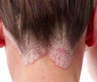 "Pityrosporum Ovale o ""caspa"" requiere tratamiento."